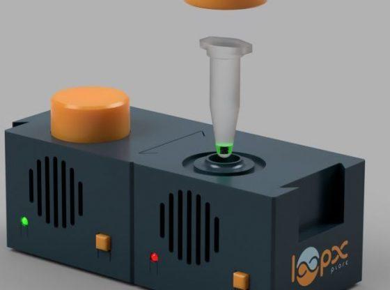 Coronavirus et dépistage : un kit mobile inventé à Caen pour tester les gens partout, chez eux ou au travail